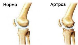 deformirujuczij-artroz-lechenie