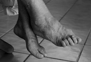 deformiruyuzcij-artroz-stopi-lechenie
