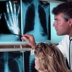 Симптомы и лечение недифференцированного артрита