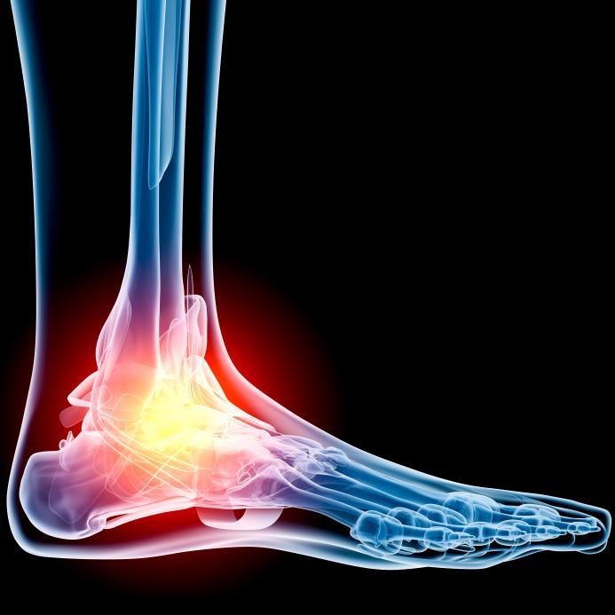 остеоартроз суставов влияние алкоголя