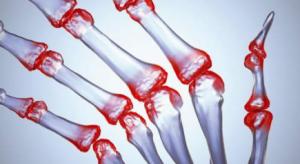 revmatoidnyy-seronegativnij-artrit