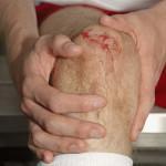 Привычный вывих коленного сустава