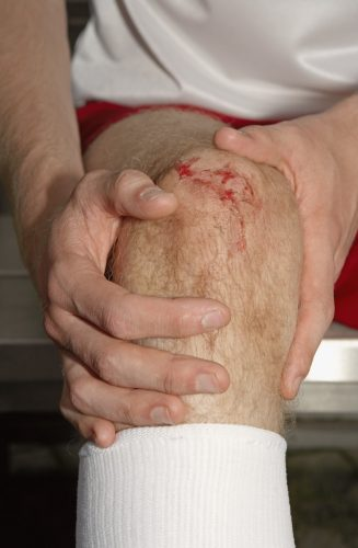 Лечение ушиба коленного сустава