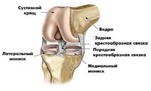 vospalenie-svyazok-kolennogo-sustava2