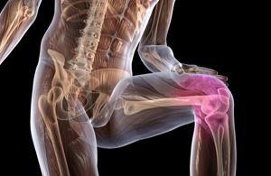 Osteohondroz-kolennogo-sustava
