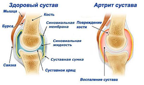 Картинки по запросу от артрита...