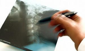 Hand eines Arztes mit Roentgenbild