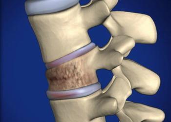 Симптомы и лечение перелома позвоночника у ребенка