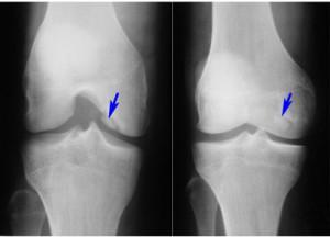 osteofity-kolennogo-sustava-lechenie