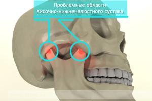 vospalenie-chelustnogo-sustava-lechenie