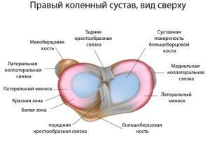 menisk-kolennogo-sustava