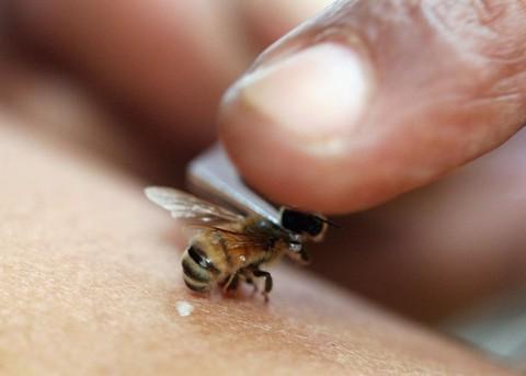 Укусы пчел помогут в лечении остеохондроза