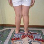 Диагностика и лечение дисплазии коленных суставов у детей