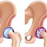 Диетотерапия при коксартрозе тазобедренного сустава