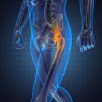 Артроскопия тазобедренных суставов