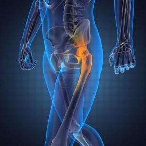 Артроскопия тазобедренного сустава 1