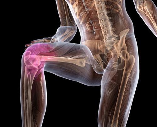 Некроз колена