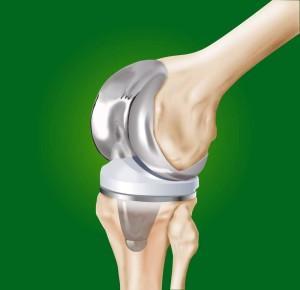 zamena-kolennogo-sustava