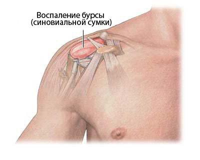 Каменный или известковый бурсит плеча