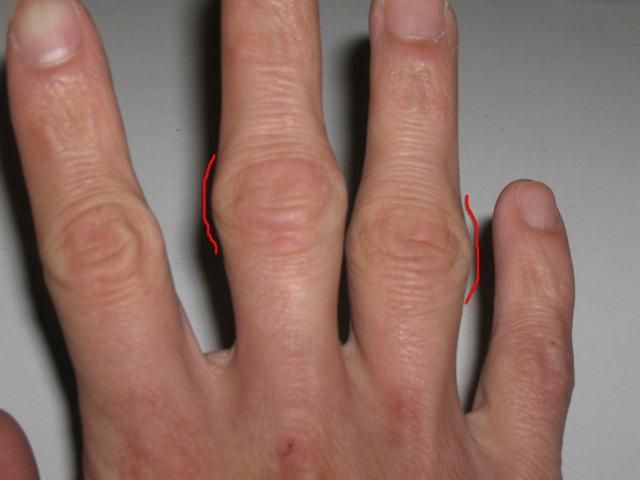 Артрит пальцев рук лечение народными средствами