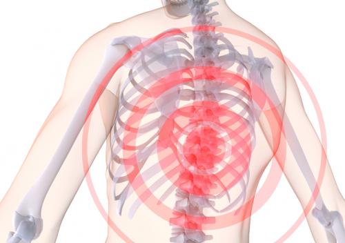 Причины и симптомы спондилеза грудного отдела