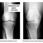 Посттравматический артроз колена