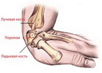 Признаки перелома лучезапястного сустава