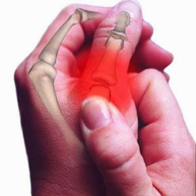Ушиб сустава пальца руки