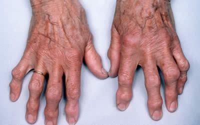 Лечение остеоартроза суставов рук