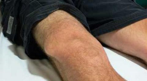 наросты на суставах пальцев рук у ребенка
