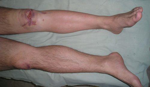 Остеомиелит колена