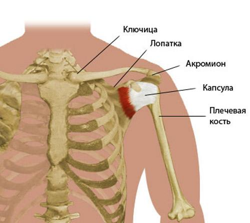 Хруст в плечевом суставе