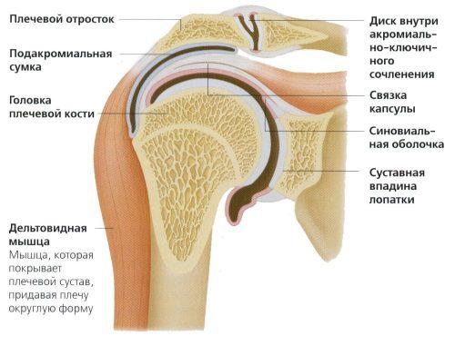 Лечение невралгии плеча