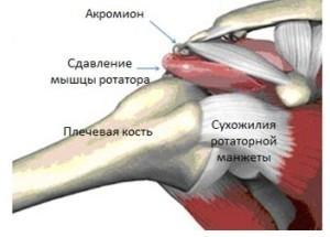 Субакромиальный синдром плечевого сустава тазобедренный сустав реклама р
