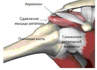 Субакромиальный синдром плечевого сустава