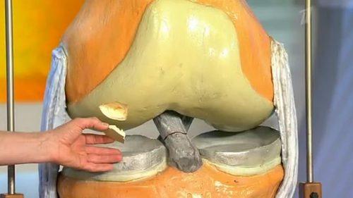 БолезньКенига коленного сустава