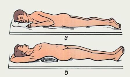 Есть ли физические упражнения от грудного остеохондроза