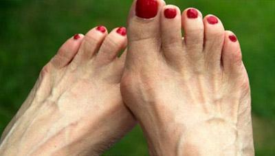 Симптомы полиартрита стопы