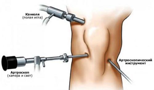 Артроскопия коленного сустава: особенности процедуры