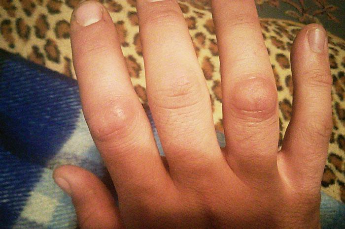 Суставы пальцев руки