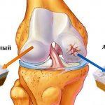 Артроз коленного сустава: причины и лечение