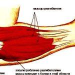 Эпикондилит локтевого сустава: лечение, причины