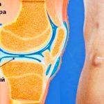 Киста Бейкера коленного сустава: причины, симптомы, лечение